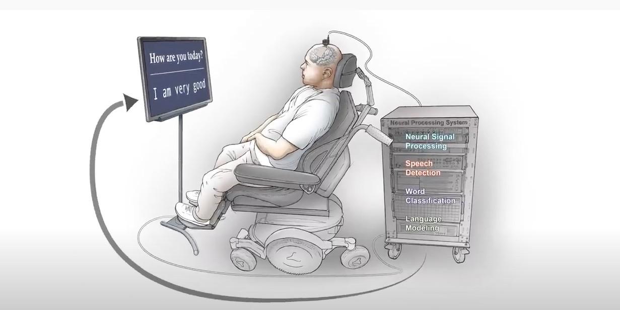 Chuyển tín hiệu sóng trong não người thành câu chữ bằng AI